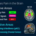 Understanding Pain 3