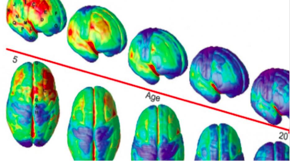 Your Brain – A Work in Progress