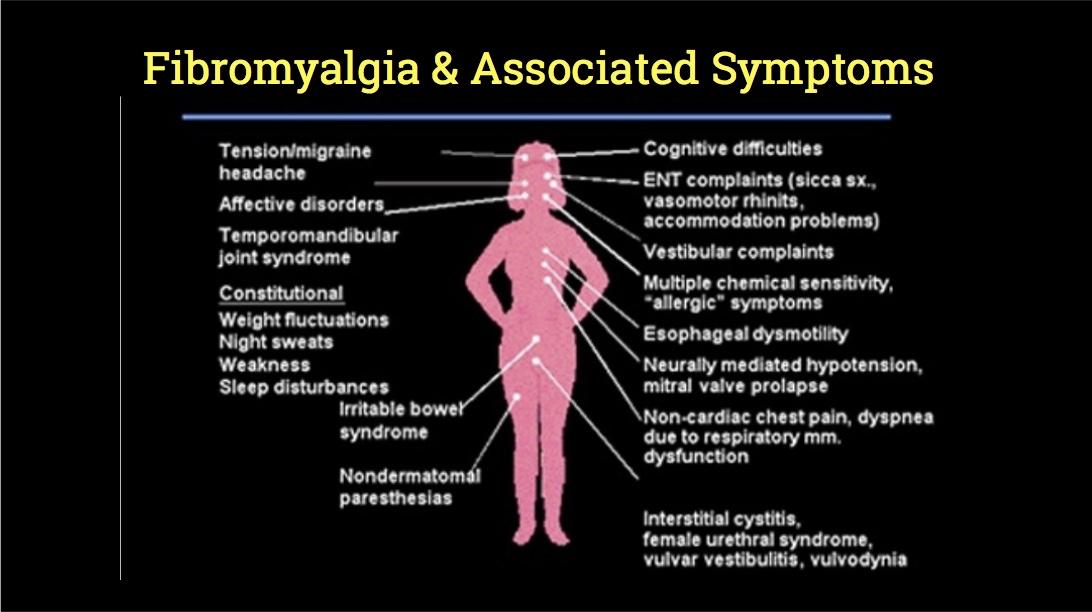 Fibromyalgia (FM)